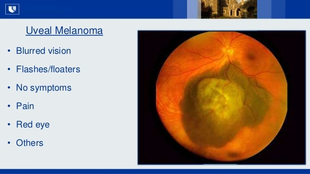 All Rights Reserved, Duke Medicine 2007 Uveal Melanoma • Blurred vision • Flashes/floaters • No symptoms • Pain • Red eye ...