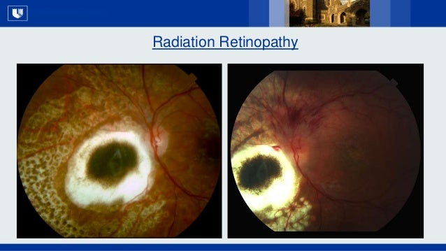 All Rights Reserved, Duke Medicine 2007 Radiation Retinopathy