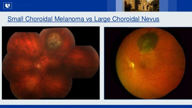 All Rights Reserved, Duke Medicine 2007 Small Choroidal Melanoma vs Large Choroidal Nevus