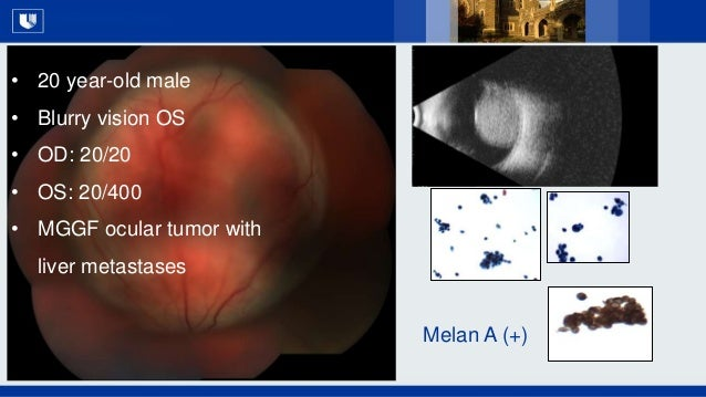 All Rights Reserved, Duke Medicine 2007 • 20 year-old male • Blurry vision OS • OD: 20/20 • OS: 20/400 • MGGF ocular tumor...