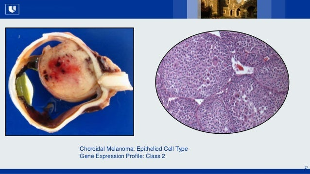 All Rights Reserved, Duke Medicine 2007 27 Choroidal Melanoma: Epitheliod Cell Type Gene Expression Profile: Class 2