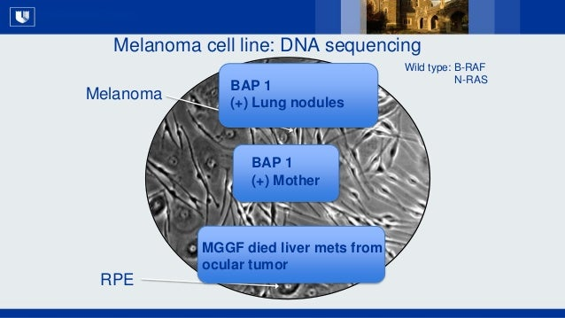 All Rights Reserved, Duke Medicine 2007 Melanoma cell line: DNA sequencing RPE Melanoma BAP 1 (+) Lung nodules BAP 1 (+) M...