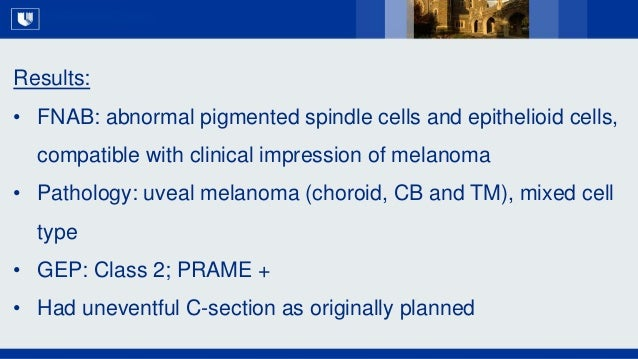 All Rights Reserved, Duke Medicine 2007 Results: • FNAB: abnormal pigmented spindle cells and epithelioid cells, compatibl...