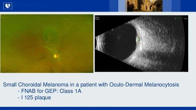 All Rights Reserved, Duke Medicine 2007 Small Choroidal Melanoma in a patient with Oculo-Dermal Melanocytosis - FNAB for G...