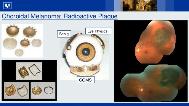 All Rights Reserved, Duke Medicine 2007 Choroidal Melanoma: Radioactive Plaque S L I D E 11 Eye Physics Bebig COMS