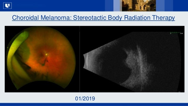 All Rights Reserved, Duke Medicine 2007 Choroidal Melanoma: Stereotactic Body Radiation Therapy 01/2019