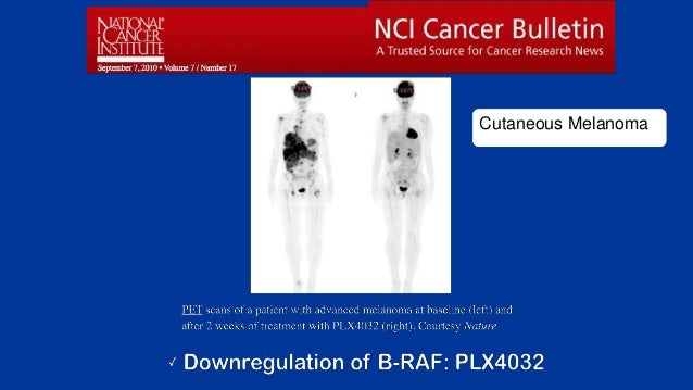 All Rights Reserved, Duke Medicine 2007 Cutaneous Melanoma