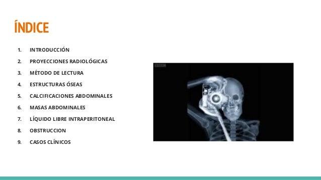 (2021 06-29) radiologia basica de abdomen (ppt) Slide 2
