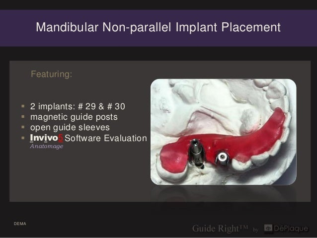 Mandibular Non-parallel Implant Placement       Featuring:      2 implants: # 29 & # 30      magnetic guide posts      ...