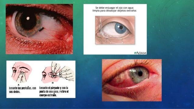Resultado de imagen para Trastornos oculares