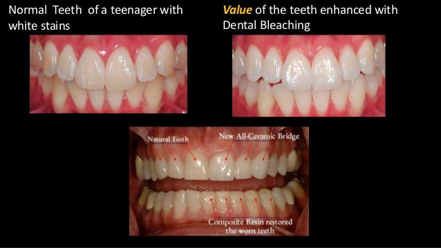 color of natural teeth