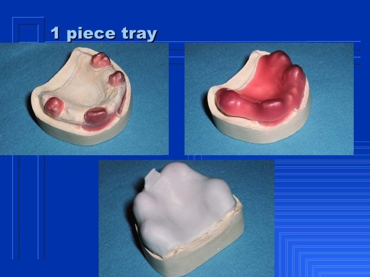 custom trays for dentures immediate denture
