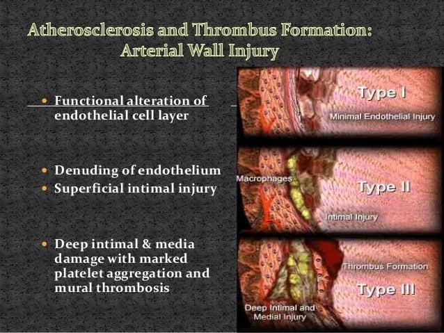 Stroke ischemic stroke for Atrial mural thrombus