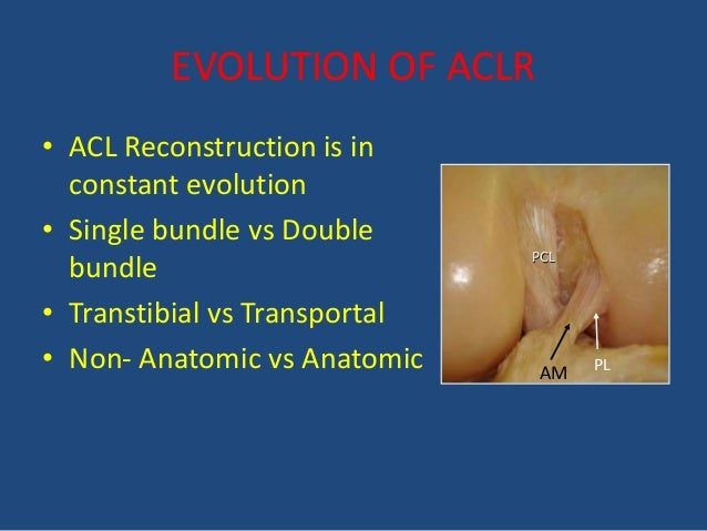 an analysis of the anterior cruciate ligament The goal of anterior cruciate ligament (acl) reconstruction is the reestablishment of the stability afforded by the native acl  traditional acl reconstruction is done using the single-anteromedial bundle technique and it has a high clinical success rate.