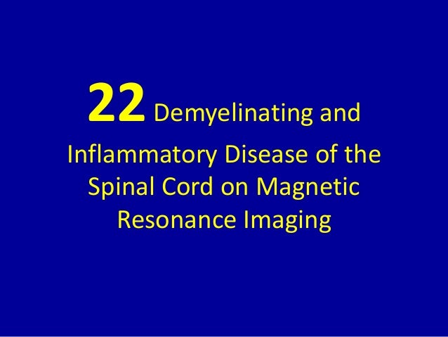 22Demyelinating and Inflammatory Disease of the Spinal Cord on Magnetic Resonance Imaging
