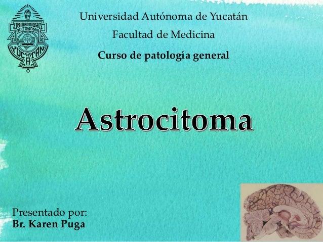 Presentado por: Br. Karen Puga Universidad Autónoma de Yucatán Facultad de Medicina Curso de patología general