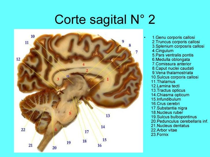 corte sagital de encefalo