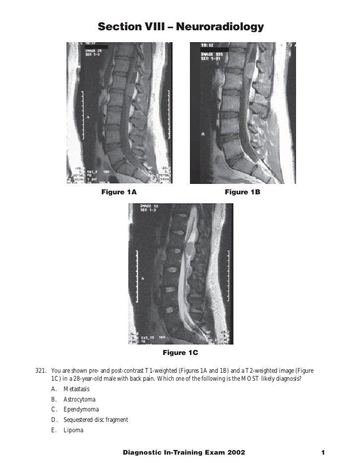 Section VIII – Neuroradiology                              Figure 1A                                     Figure 1B        ...