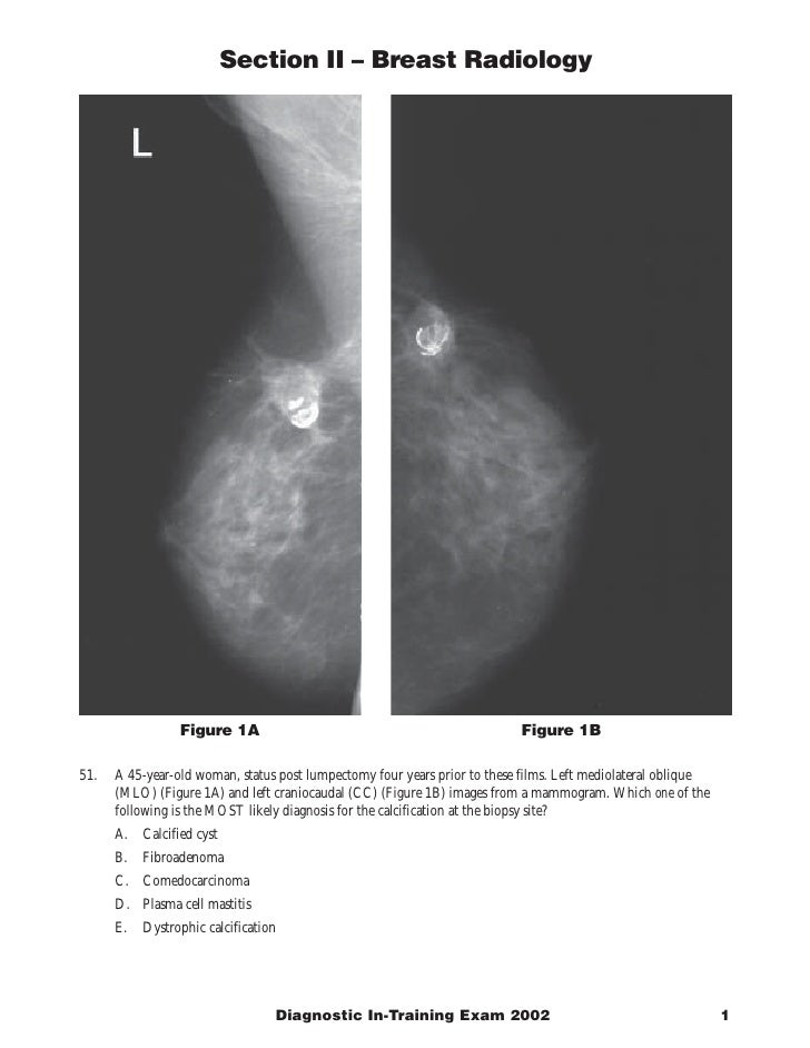 Section II – Breast Radiology                      Figure 1A                                                 Figure 1B  51...