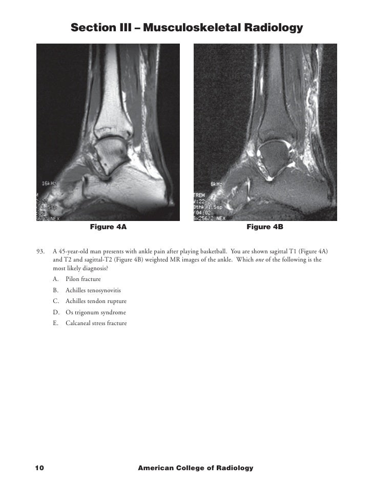 Section III – Musculoskeletal Radiology                         Figure 4A                                                 ...
