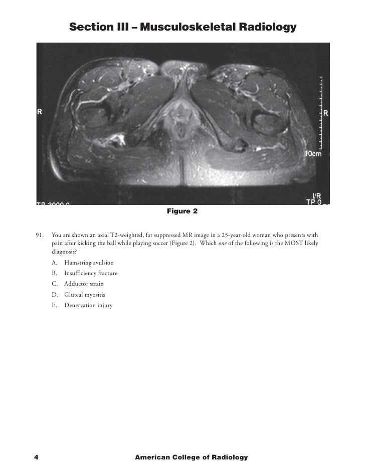 Section III – Musculoskeletal Radiology                                                        Figure 2   91.   You are sh...