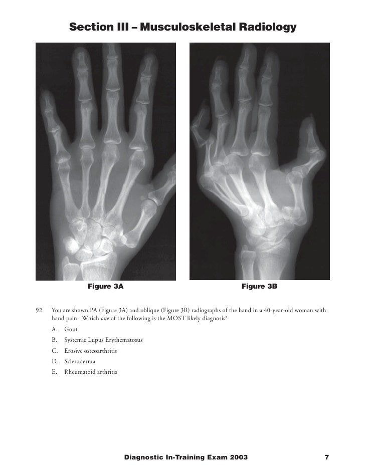 Section III – Musculoskeletal Radiology                        Figure 3A                                                 F...