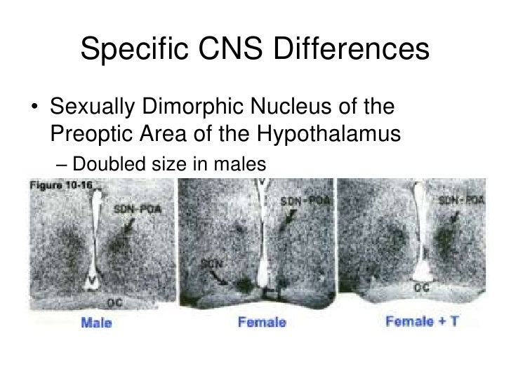Sexually dimorphic nucleus discovered by