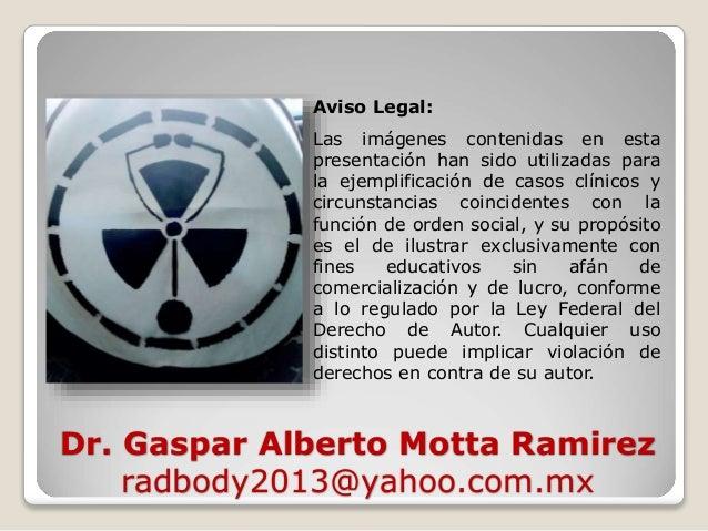 Dr. Gaspar Alberto Motta Ramirez radbody2013@yahoo.com.mx Aviso Legal: Las imágenes contenidas en esta presentación han si...