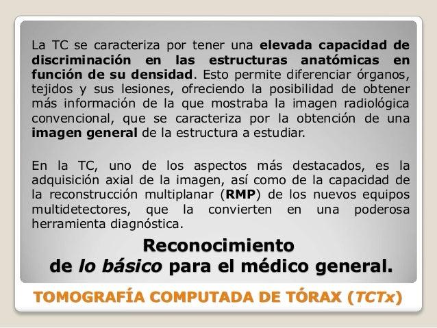 TOMOGRAFÍA COMPUTADA DE TÓRAX (TCTx) Reconocimiento de lo básico para el médico general. La TC se caracteriza por tener un...