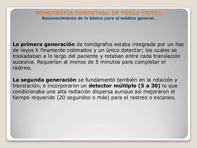 TOMOGRAFÍA COMPUTADA DE TÓRAX (TCTx): Reconocimiento de lo básico para el médico general. La primera generación de tomóg...