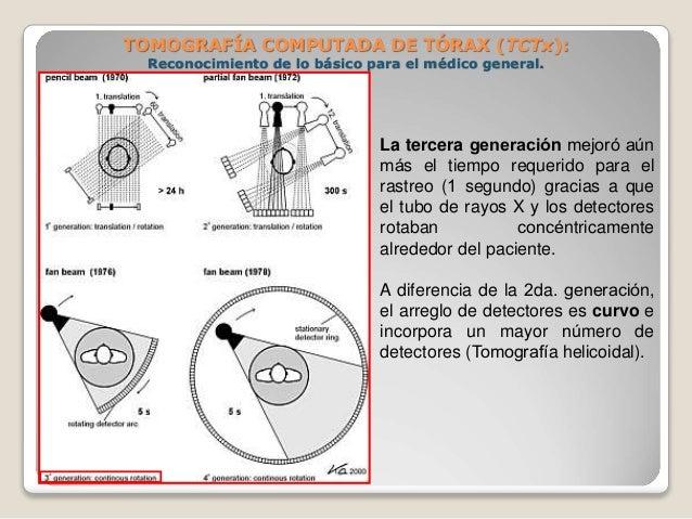 TOMOGRAFÍA COMPUTADA DE TÓRAX (TCTx): Reconocimiento de lo básico para el médico general. La tercera generación mejoró a...