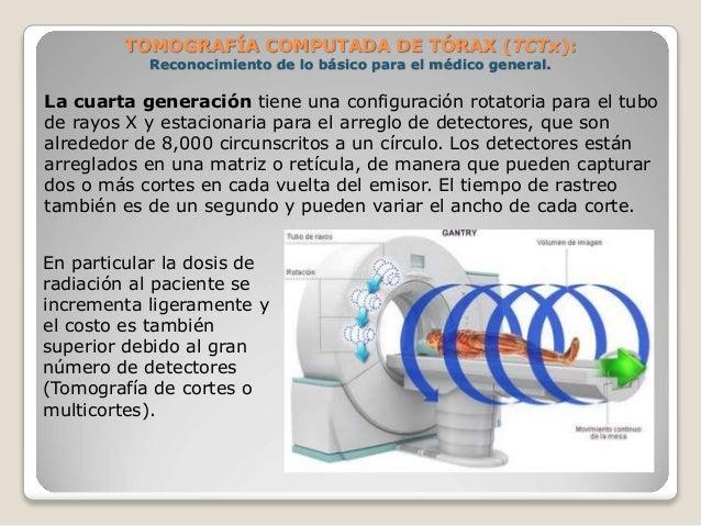 TOMOGRAFÍA COMPUTADA DE TÓRAX (TCTx): Reconocimiento de lo básico para el médico general. La cuarta generación tiene una ...