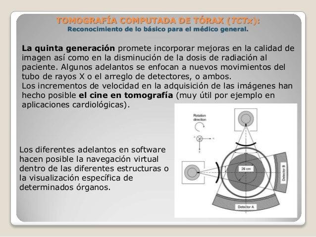 TOMOGRAFÍA COMPUTADA DE TÓRAX (TCTx): Reconocimiento de lo básico para el médico general. La quinta generación promete in...