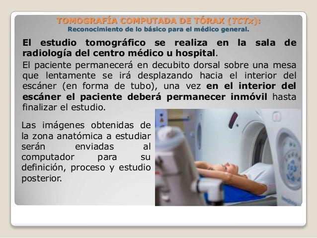 El estudio tomográfico se realiza en la sala de radiología del centro médico u hospital. El paciente permanecerá en decubi...