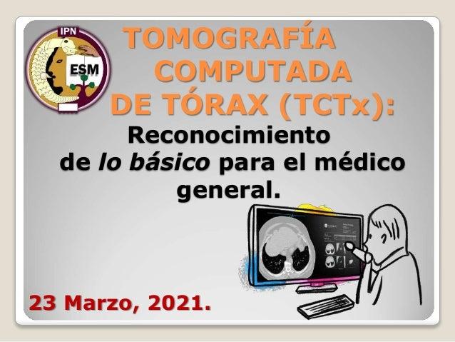 TOMOGRAFÍA COMPUTADA DE TÓRAX (TCTx): Reconocimiento de lo básico para el médico general. 23 Marzo, 2021.