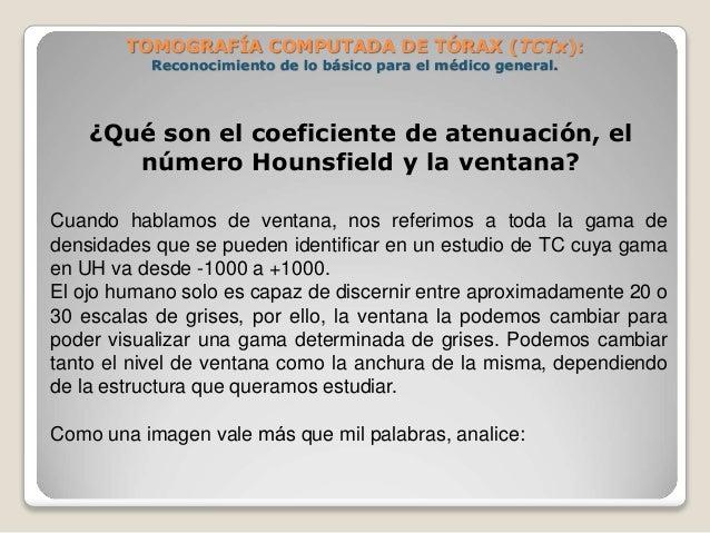 ¿Qué son el coeficiente de atenuación, el número Hounsfield y la ventana? Cuando hablamos de ventana, nos referimos a t...