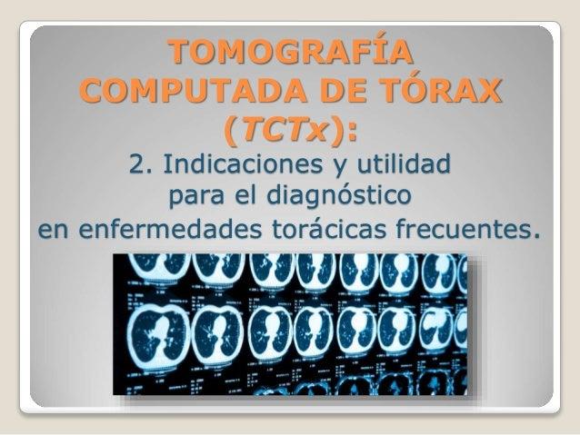 TOMOGRAFÍA COMPUTADA DE TÓRAX (TCTx): 2. Indicaciones y utilidad para el diagnóstico en enfermedades torácicas frecuentes.