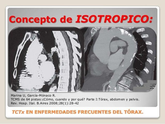 Concepto de ISOTROPICO: TCTx EN ENFERMEDADES FRECUENTES DEL TÓRAX. Marina U, García-Mónaco R. TCMS de 64 pistas:¿Cómo, cua...