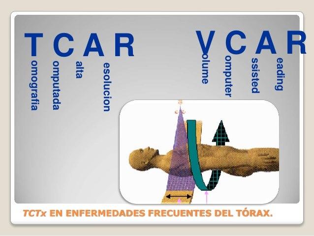 V C A R olume omputer ssisted eading T C A R omografia omputada alta esolucion TCTx EN ENFERMEDADES FRECUENTES DEL TÓRAX.