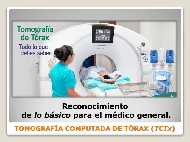 TOMOGRAFÍA COMPUTADA DE TÓRAX (TCTx) Reconocimiento de lo básico para el médico general.