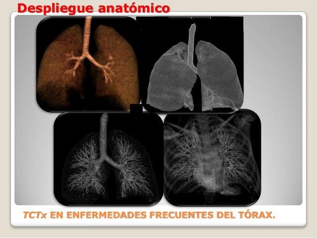 Despliegue anatómico TCTx EN ENFERMEDADES FRECUENTES DEL TÓRAX.