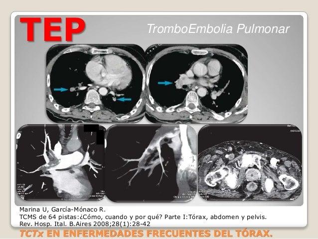 TEP TromboEmbolia Pulmonar Marina U, García-Mónaco R. TCMS de 64 pistas:¿Cómo, cuando y por qué? Parte I:Tórax, abdomen y ...