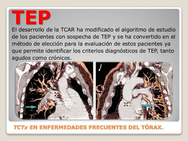 TEP El desarrollo de la TCAR ha modificado el algoritmo de estudio de los pacientes con sospecha de TEP y se ha convertido...