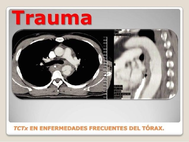 Trauma TCTx EN ENFERMEDADES FRECUENTES DEL TÓRAX.