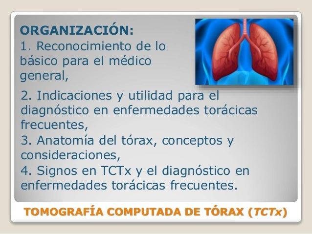 TOMOGRAFÍA COMPUTADA DE TÓRAX (TCTx) ORGANIZACIÓN: 1. Reconocimiento de lo básico para el médico general, 2. Indicaciones ...