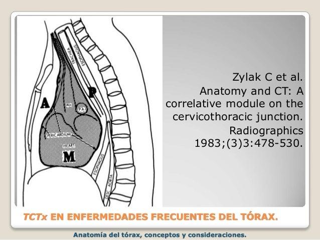 Anatomía del tórax, conceptos y consideraciones. TCTx EN ENFERMEDADES FRECUENTES DEL TÓRAX. Zylak C et al. Anatomy and CT:...