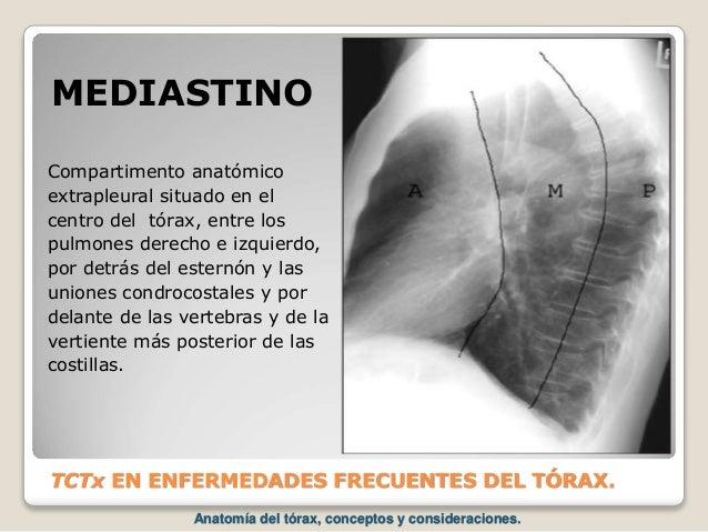 TCTx EN ENFERMEDADES FRECUENTES DEL TÓRAX. Compartimento anatómico extrapleural situado en el centro del tórax, entre los ...