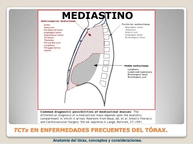 TCTx EN ENFERMEDADES FRECUENTES DEL TÓRAX. MEDIASTINO Anatomía del tórax, conceptos y consideraciones.