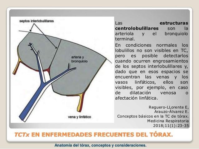 TCTx EN ENFERMEDADES FRECUENTES DEL TÓRAX. Reguero-LLorente E, Arauzo-Álvarez E. Conceptos básicos en la TC de tórax. Medi...