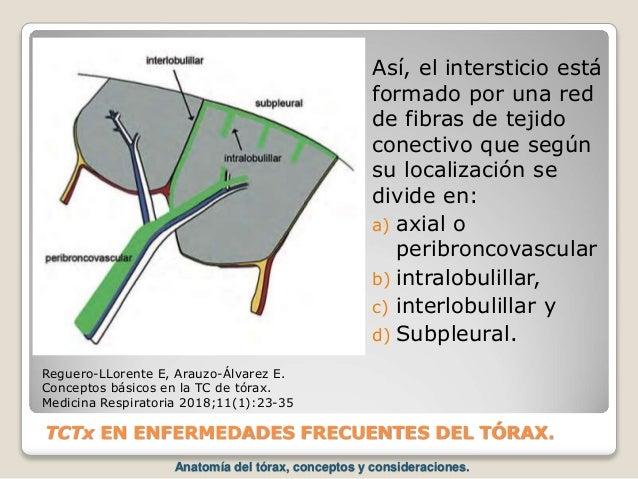 TCTx EN ENFERMEDADES FRECUENTES DEL TÓRAX. Así, el intersticio está formado por una red de fibras de tejido conectivo que...